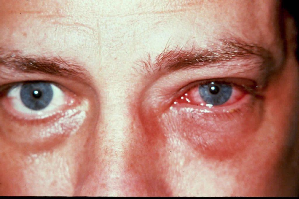 التهاب الهربس في القرنية